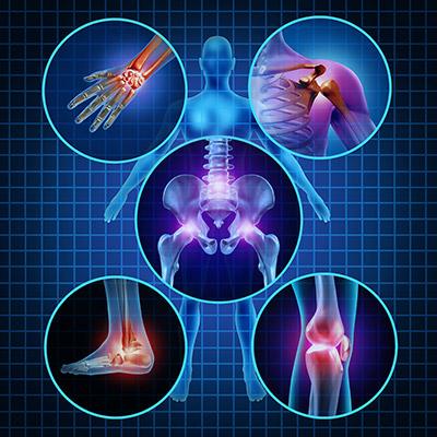 Osteosynthesis